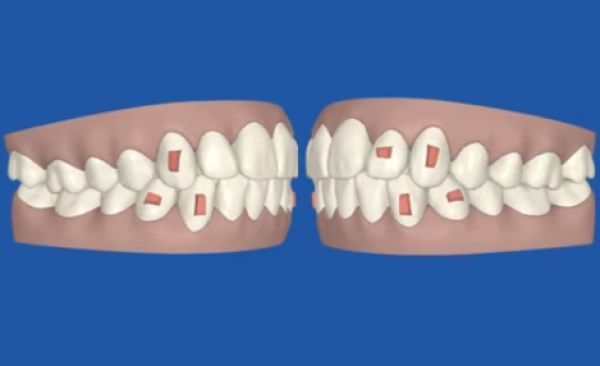 Simulation 3D du traitement (Le clincheck Invisalign)